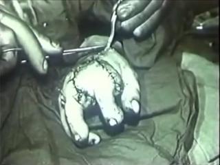 Эксперименты над людьми в СССР . перемещение пальцев ног