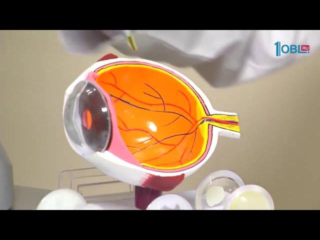 Лазерное удаление плавающих мушек (витреолизис)