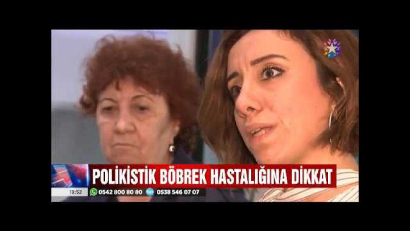 Türkiye'de tedavisi olmayan Polikistik Böbrek Hastalığı nedir?