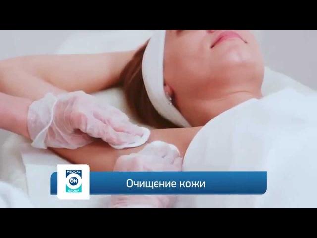 Лечение гипергидроза