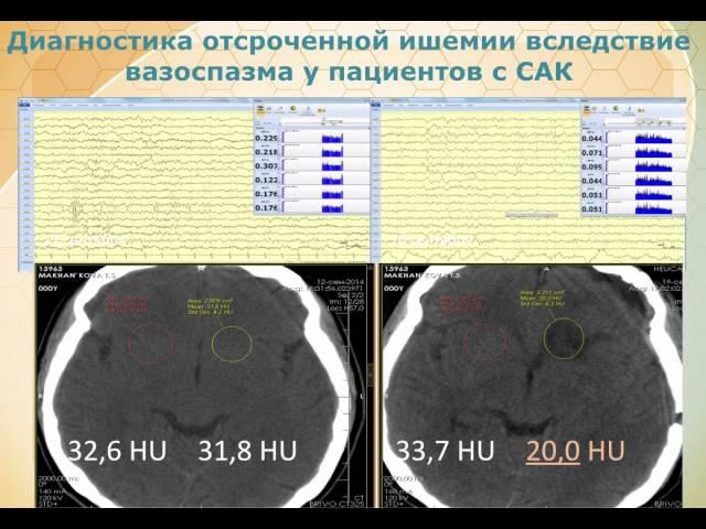 EEG мониторинг в отделении нейрореанимации Кристина Лаптева