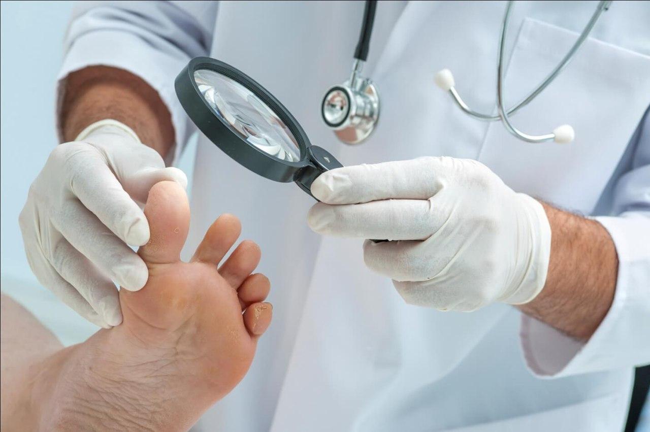 Чем можно лечить грибок ногтей