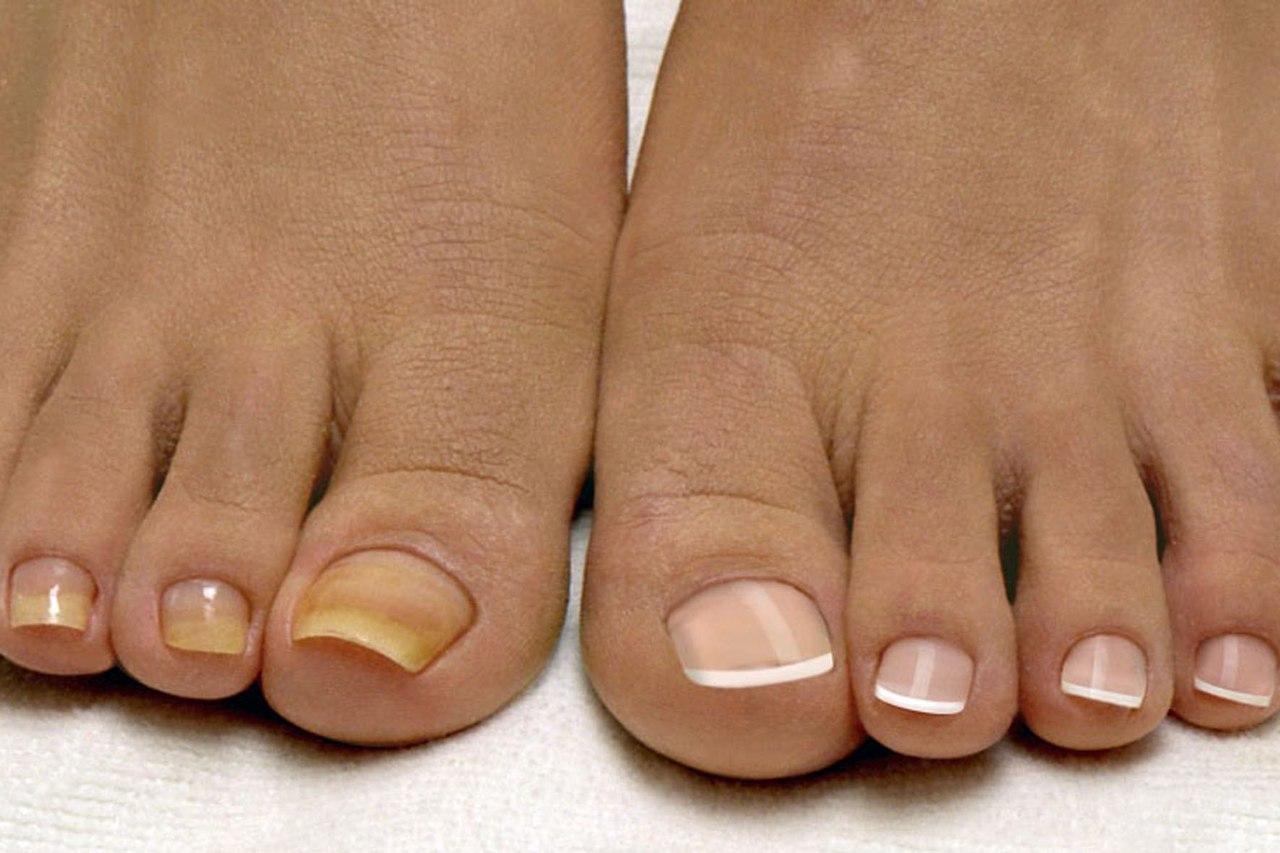 медицина лечение грибка ногтей лазером