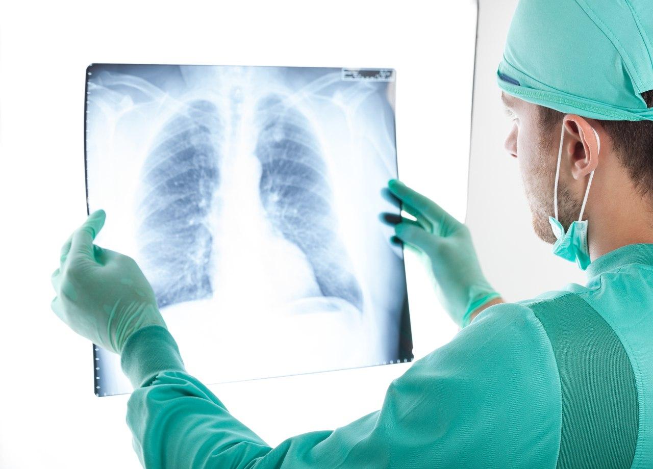 ранние симптомы рака легких у женщин