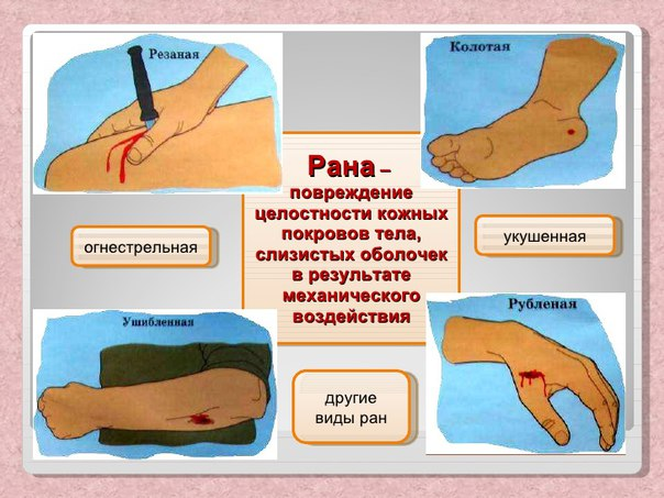 Чем обработать открытую рану в домашних условиях 189
