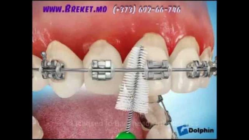 как правильно чистить зубы с брекетами.flv