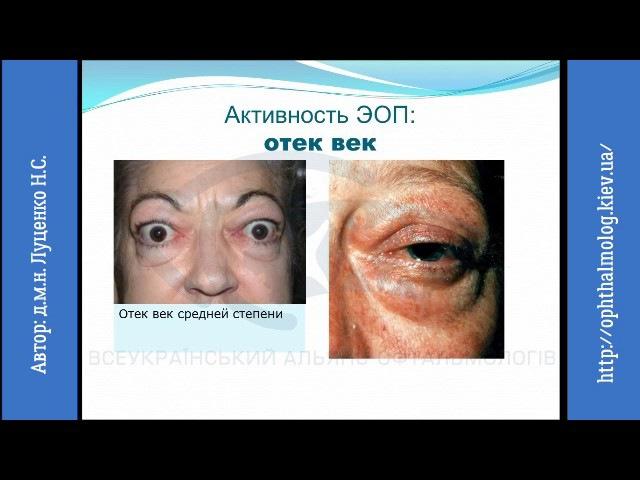 Сучасні підходи до діагностики та лікування ендокринної офтальмопатії