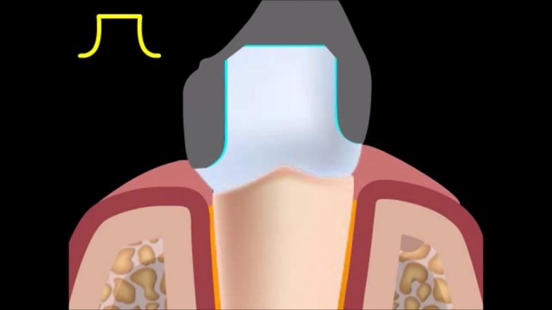 Препарирование зуба под металлокерамическую коронку