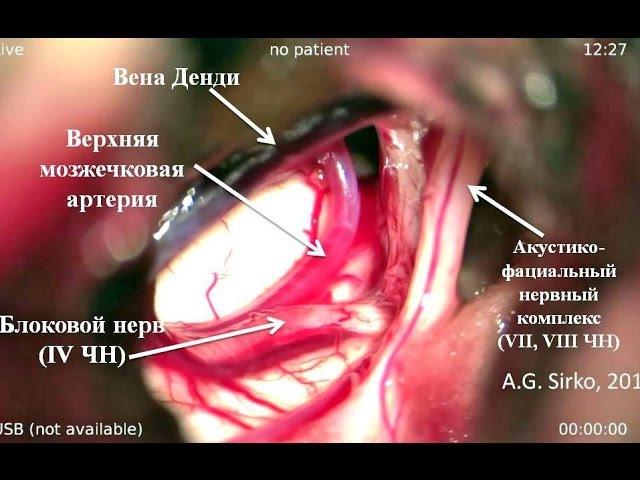 Гигантская хроническая субдуральная гематома правого мостомозжечкового угла Часть I