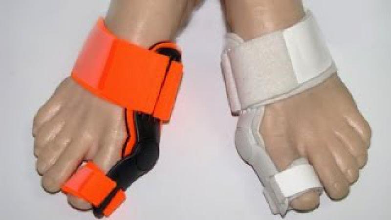 Мешает косточка на большом пальце ноги - поможет вальгусная шина или фиксатор большлго пальца