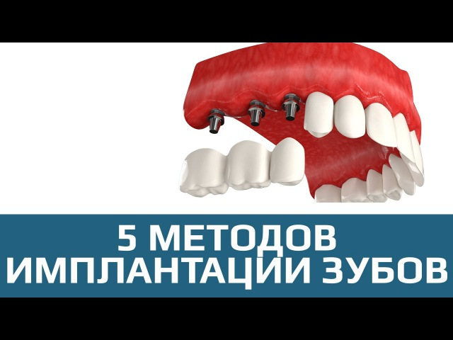 Имплантация зубов 5 методов имплантации зубов