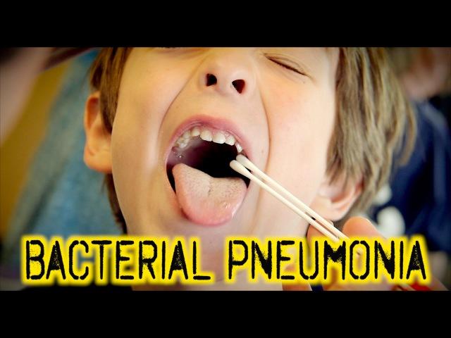 BACTERIAL PNEUMONIA: Diagnosis Treatment | Dr. Paul