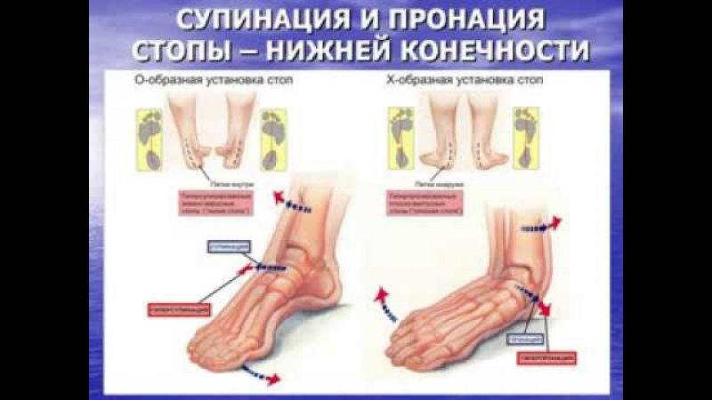 Визуальная и клиническая диагностика плоскостопия