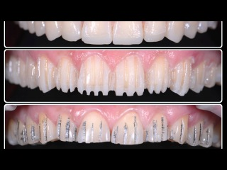 Эстетическая реабилитация винирами. ортопедическая стоматология.