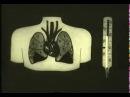 Лечение бактериальных пневмоний, воспаление легких © Treatment of bacterial pneumonia, pneumonia