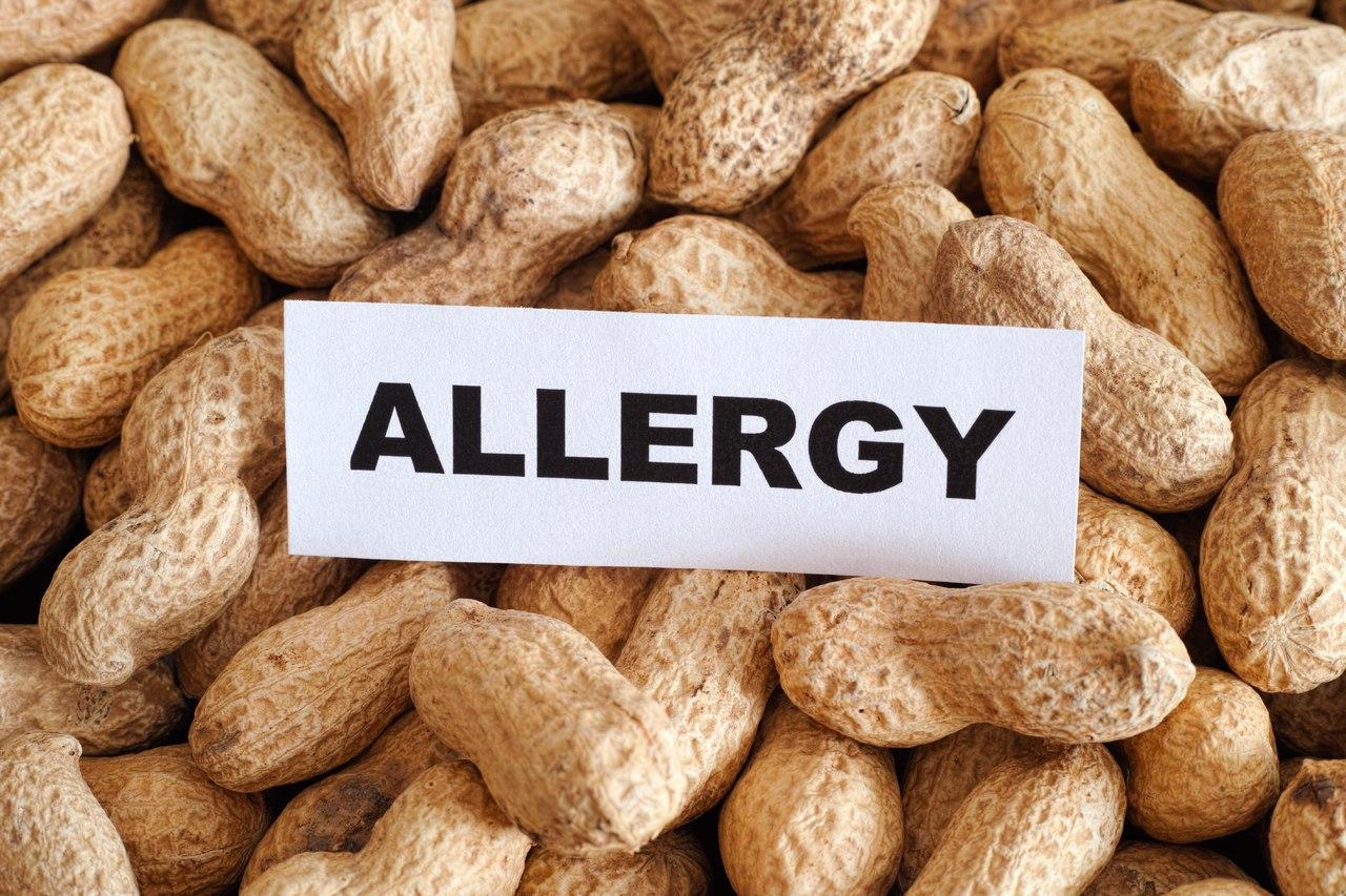 Аллергия после еды в китайском ресторане