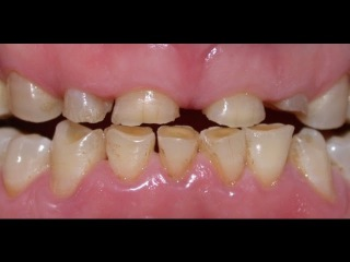 Surgical Crown Lengthening on Severe Tooth Surface Loss. Kuljeet MEHTA-Periodontist.