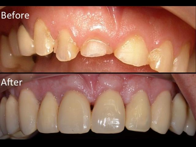 Surgical Crown Lengthening-Upper teeth.Kuljeet MEHTA-Periodontist. www:kmperio.co.uk