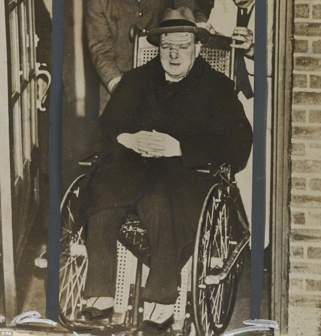 Уинстон Черчилль после оказания первой медицинской помощи. В 1931 году при пересечении 5-й авеню в Нью-Йорке его сбила машина.