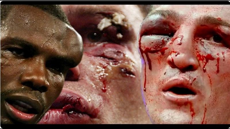 TOP 10 Самых Ужасных Травм в Боксе