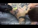Удаление татуировки на спине неодимовым лазером удалениетату удалениетатуаж лазерноеудалениетату