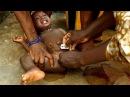 Ужасы женского обрезания в Африке