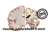 Vsauce: мозг и болезнь Альцгеймера