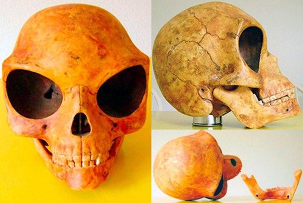 Силэндский череп