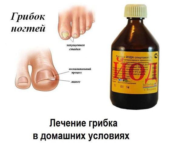 Лечения ногтевого грибка в домашних условиях