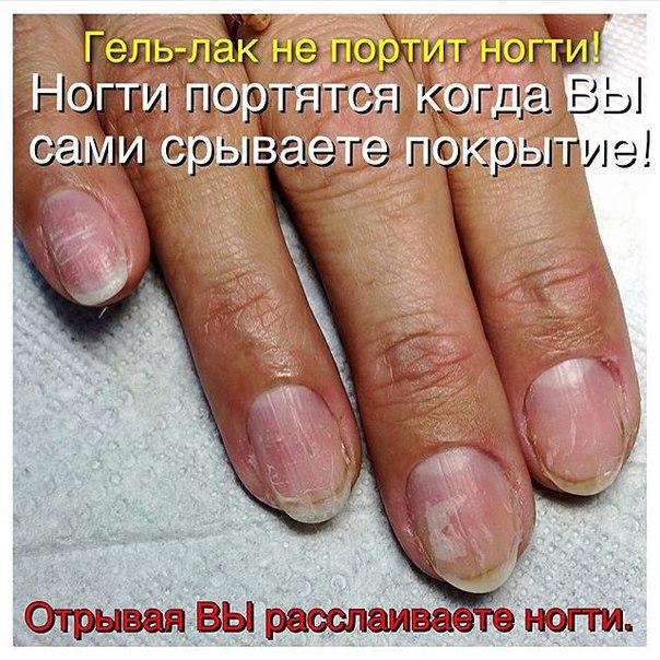 Почему под гель лаком болят ногти