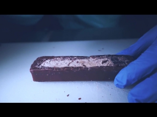 Spinal KitKat Implantation in a 3 Musketeers
