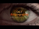 OCT Angiography OCTA by Optovue