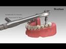 Dentium Prosthesis Procedure