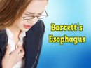 Barretts Esophagus, Barretts Esophagus Metaplasia, Barretts Esophagus Bulimia