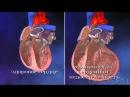 Хроническая сердечная недостаточность ХСН - YouTube