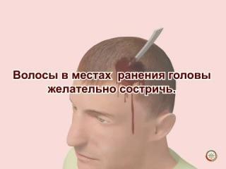 Травмы головы, первая помощь