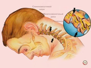 Основные проявления травмы шейного, грудного, поясничного отделов позвоночника
