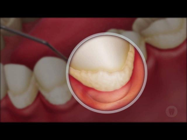 Глубокая очистка зубов с сильным налетом