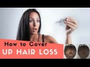 How to Cover Up Hair Loss, Bald Spots, Thinning Hair, Receding Hairline Effectively