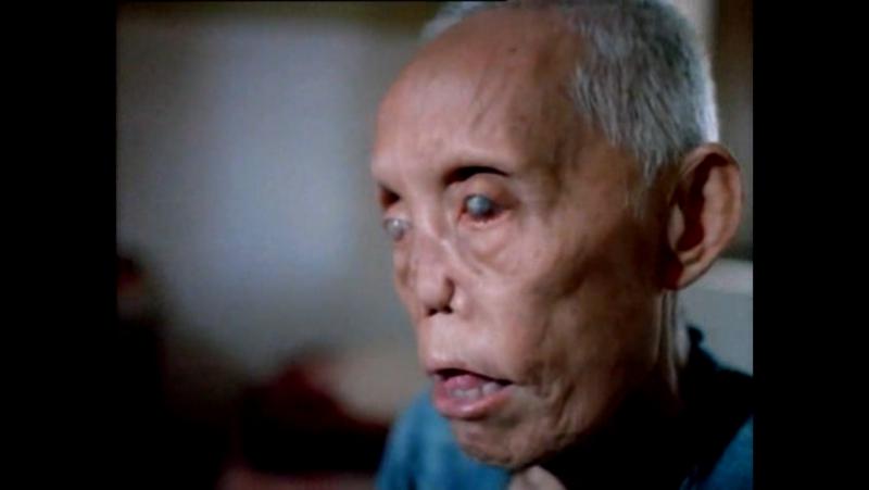 Шокирующая Азия, лепрозорий в Тайланде