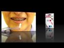 Как чистить зуб, если носишь брекеты