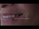 Stomatologiya-nalchik_azamat - tekuyev -Dr- Azamat -Tekuyev - Smile-Designer -zubnie -protezi -klassicheskie001