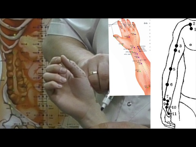 Секреты китайской медицины (7). Точка цзин-цюй. Меридиан легких Р8.