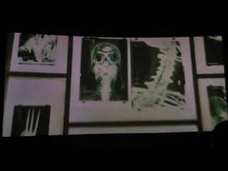 Люди Икс: Апокалипсис (Сцена после титров) | Оружие икс.