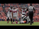 #40 Vic Beasley (LB, Falcons)  Top 100 Players of 2017  NFL