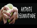 Artrite Reumatoide Artrite Cause Artrite Ginocchio Artrite Idiopatica Giovanile Terapia