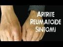 Artrite Reumatoide Sintomi Artrite Artrosi Artrite Del Piede Artrite Indifferenziata