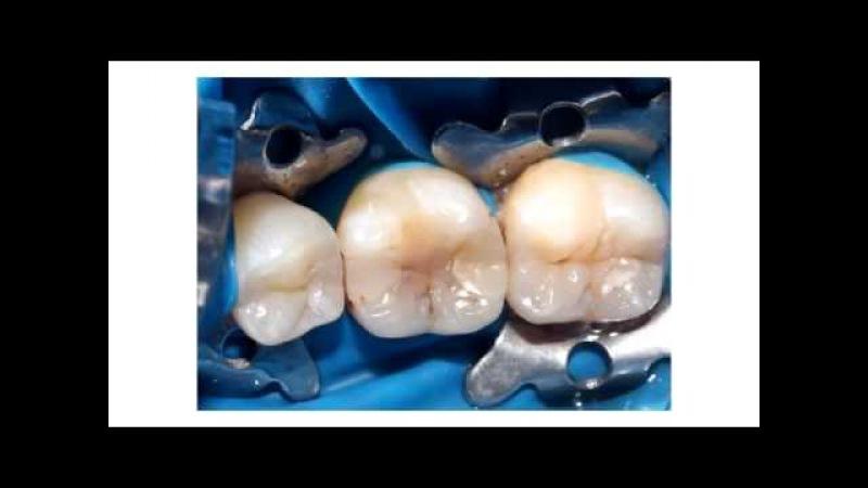 Denuo. Пряма реставрація 36, МОД порожнина. Direct restoration of the tooth 36 MOD cavity