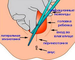 trahnul-devku-v-legginsah