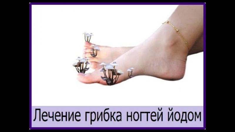 лечение йодом грибка ногтей на руках